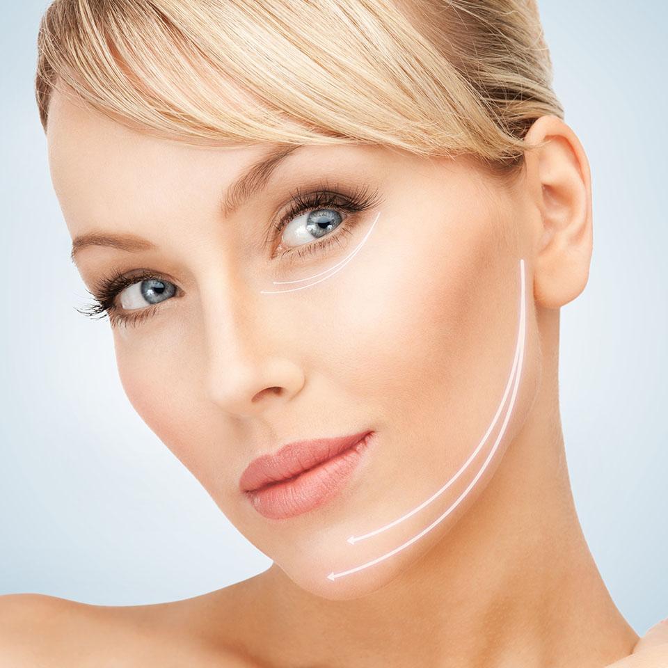 Medicina estética facial en Granada - Tratamiento Hilos tensores | Clínica Cocoon